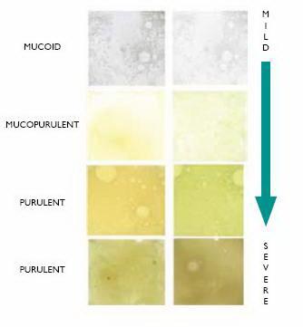 Sputum - Bronchiectasis