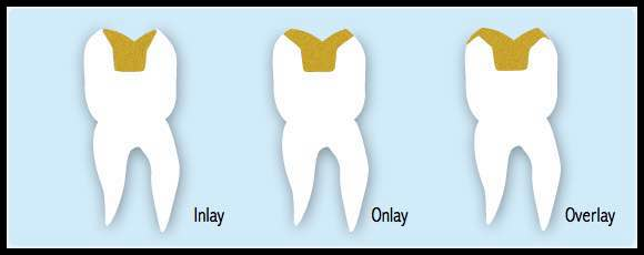 Onlay Restorations Forest Grove, OR Tidwell Dental of Forest Grove