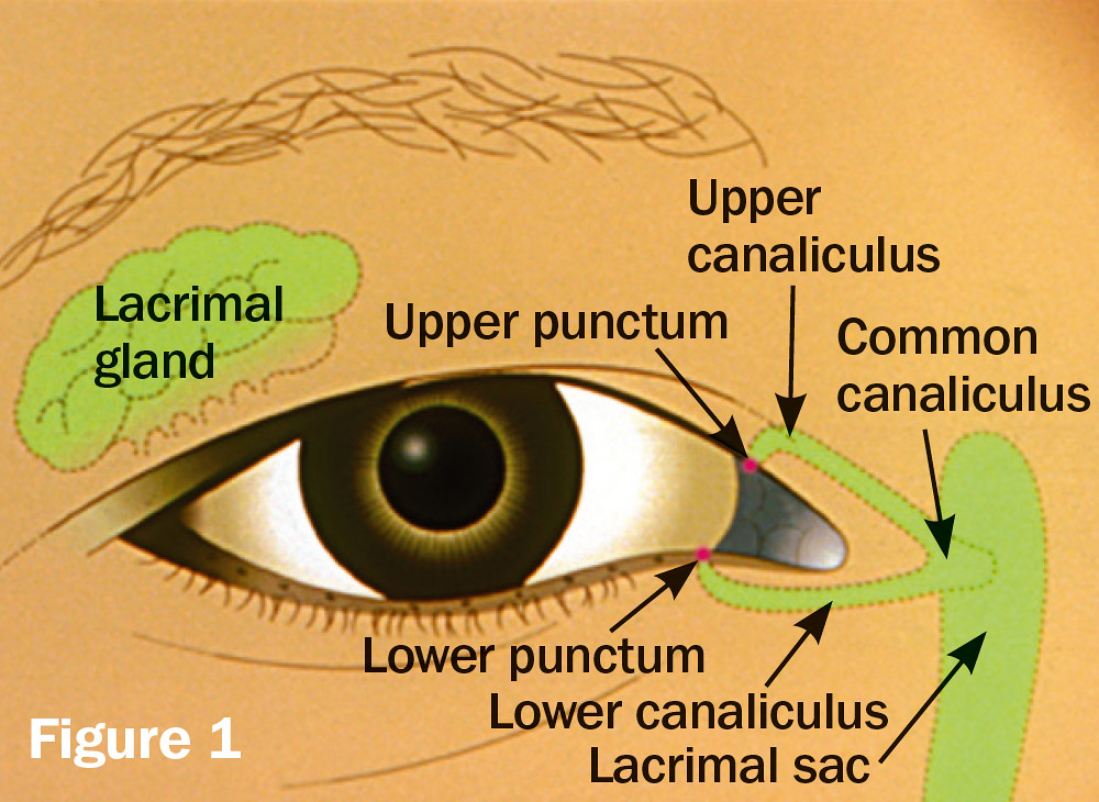 Anatomy of the lacrimal apparatus Illustration ICEH Publ\u2026 Flickr