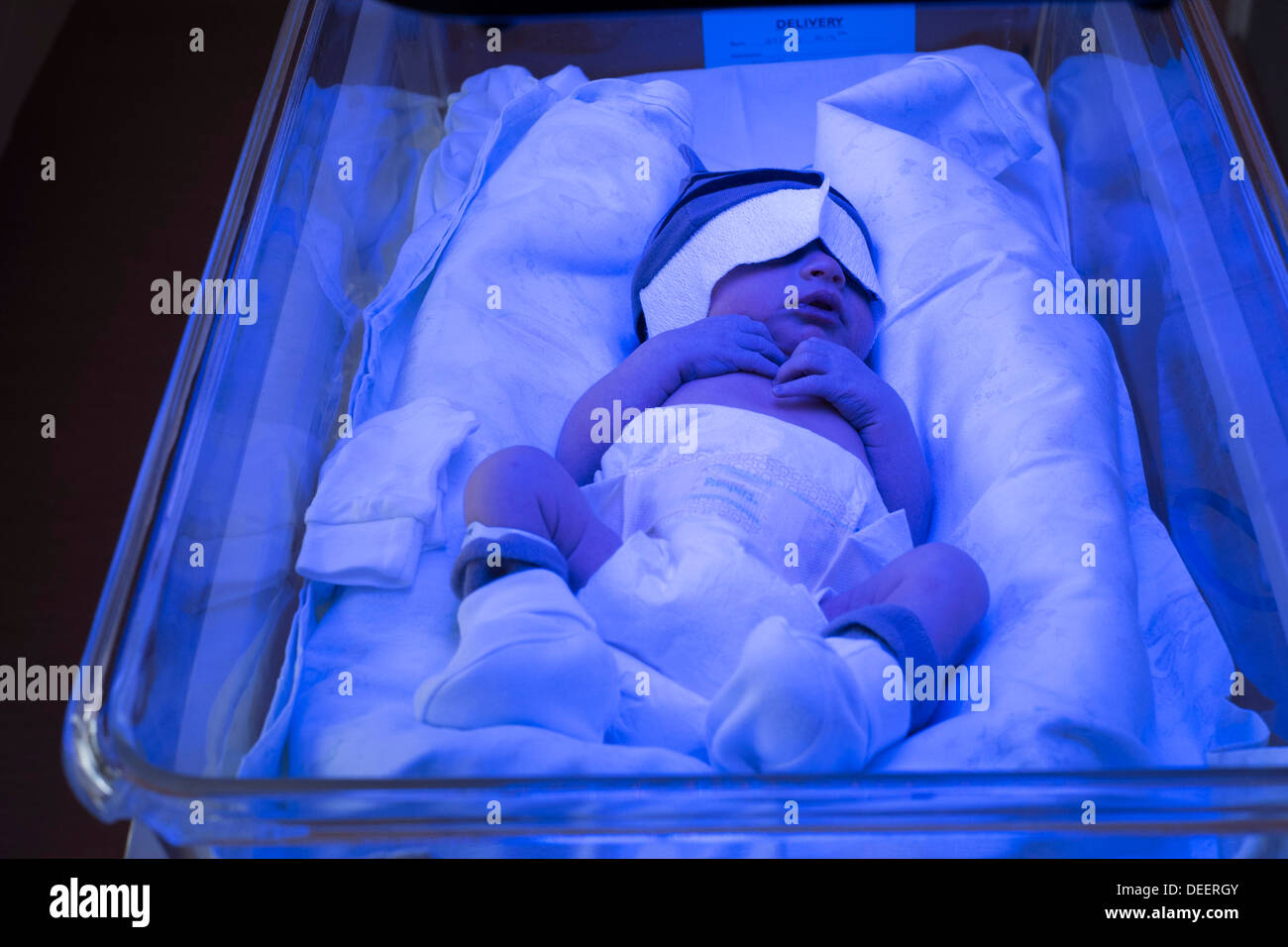 Newborn Babies Jaundice Treatment A Newborn Baby Boy Getting Treated For Jaundice Under A