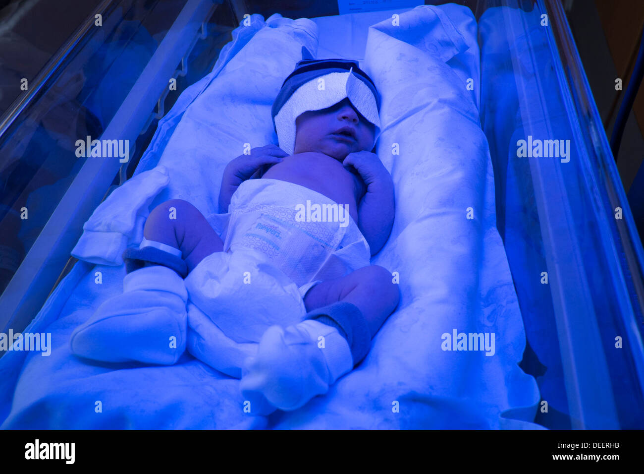 Newborn Babies Jaundice Treatment Baby With Phototherapy Stock Photos Baby With Phototherapy