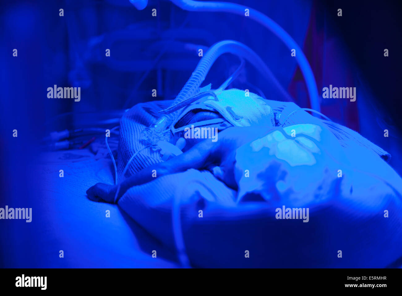 Newborn Babies Jaundice Treatment Newborn Baby Undergoing Ultraviolet Light Treatment For