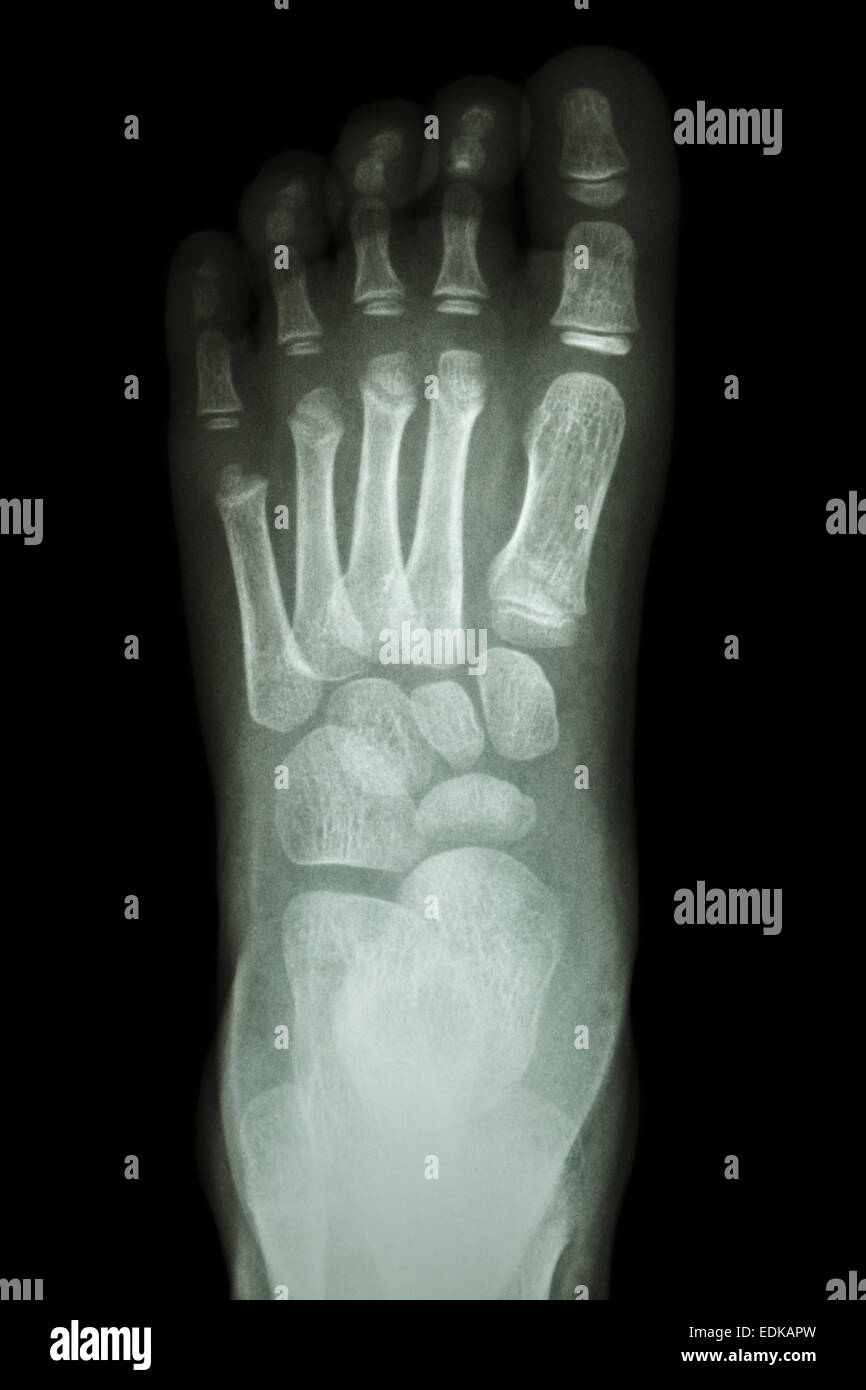 Baby Newborn Xray Film X Ray Foot Ap Show Normal Child S Foot Stock Photo