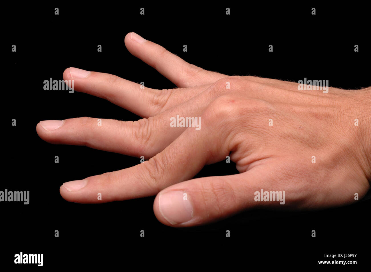 Ehlers Danlos Syndrome Ehlers Danlos Syndrome Stock Photo 140905463 Alamy