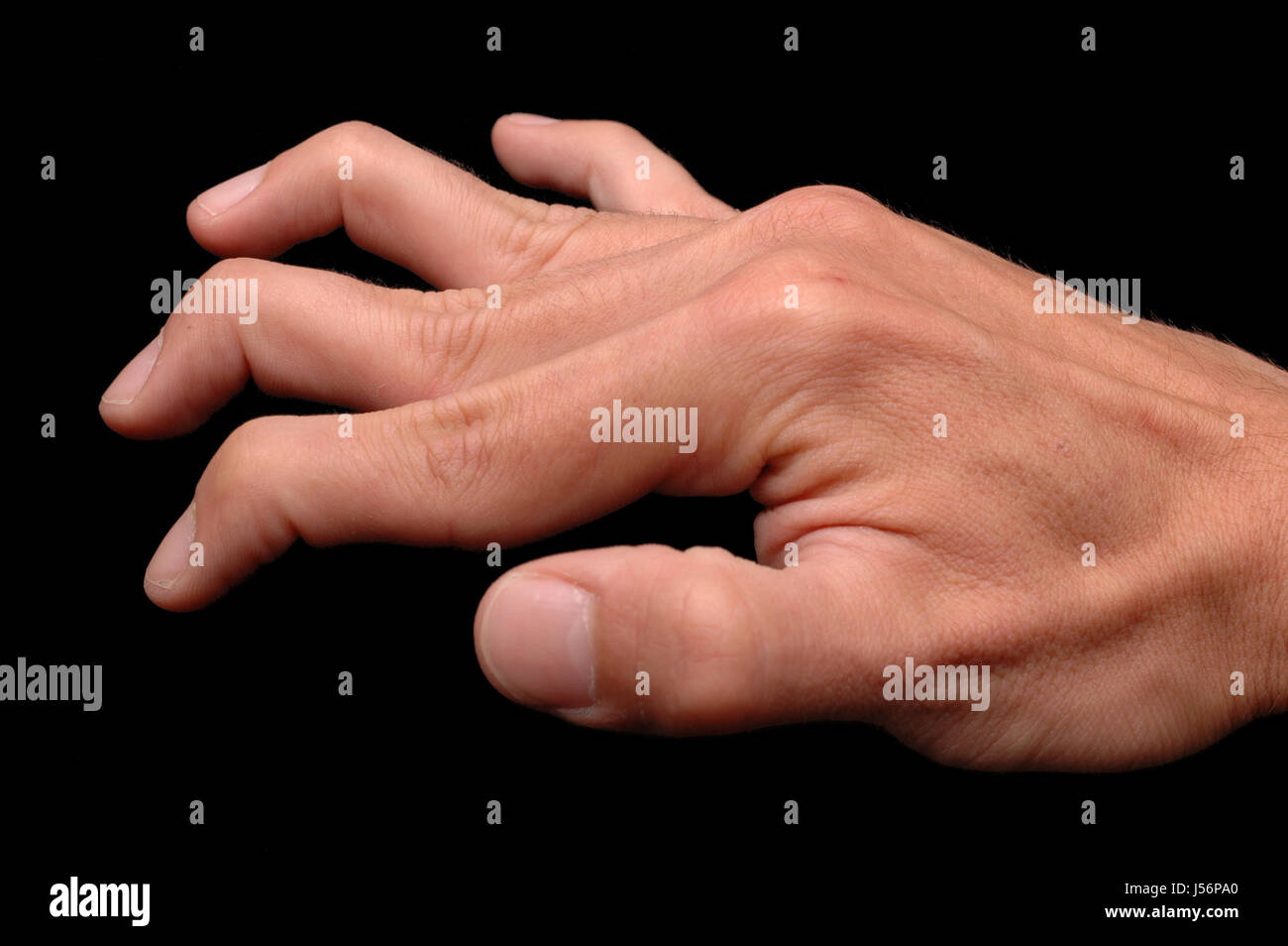 Ehlers Danlos Syndrome Ehlers Danlos Syndrome Stock Photo 140905464 Alamy