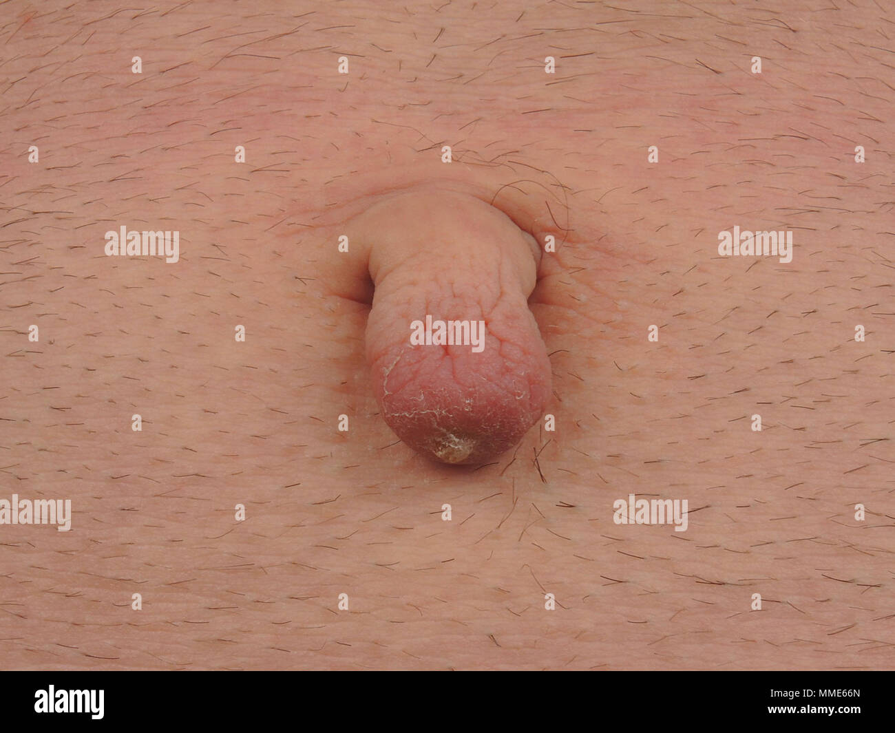 Ehlers Danlos Syndrome Umbilicus Excrescence Caused By Ehlers Danlos Syndrome Stock Photo