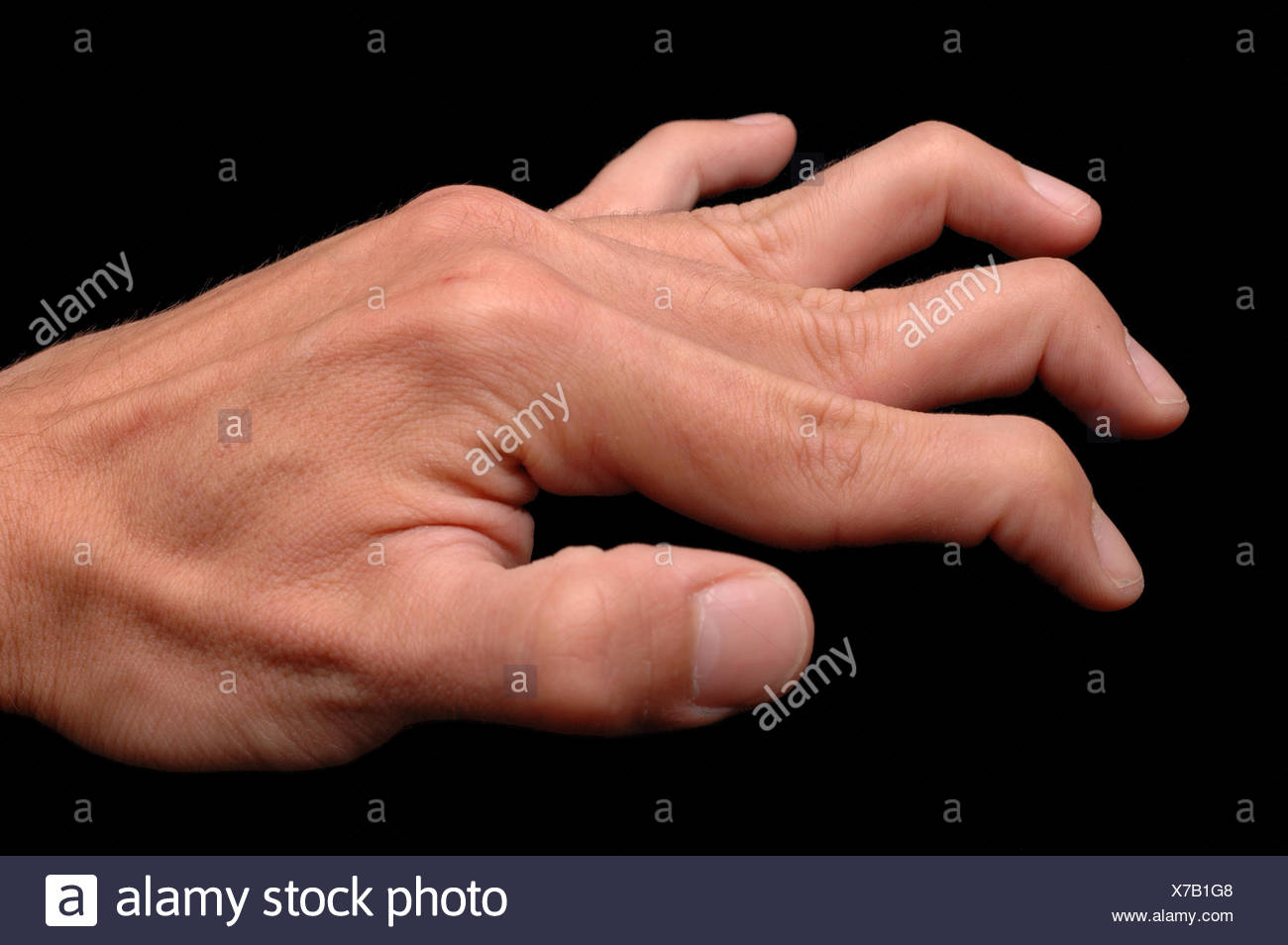 Ehlers Danlos Syndrome Ehlers Danlos Syndrome Stock Photo 279911192 Alamy