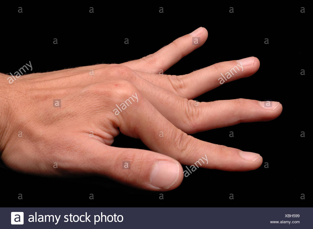 Ehlers Danlos Syndrome Ehlers Danlos Syndrome Stock Photo 282504469 Alamy