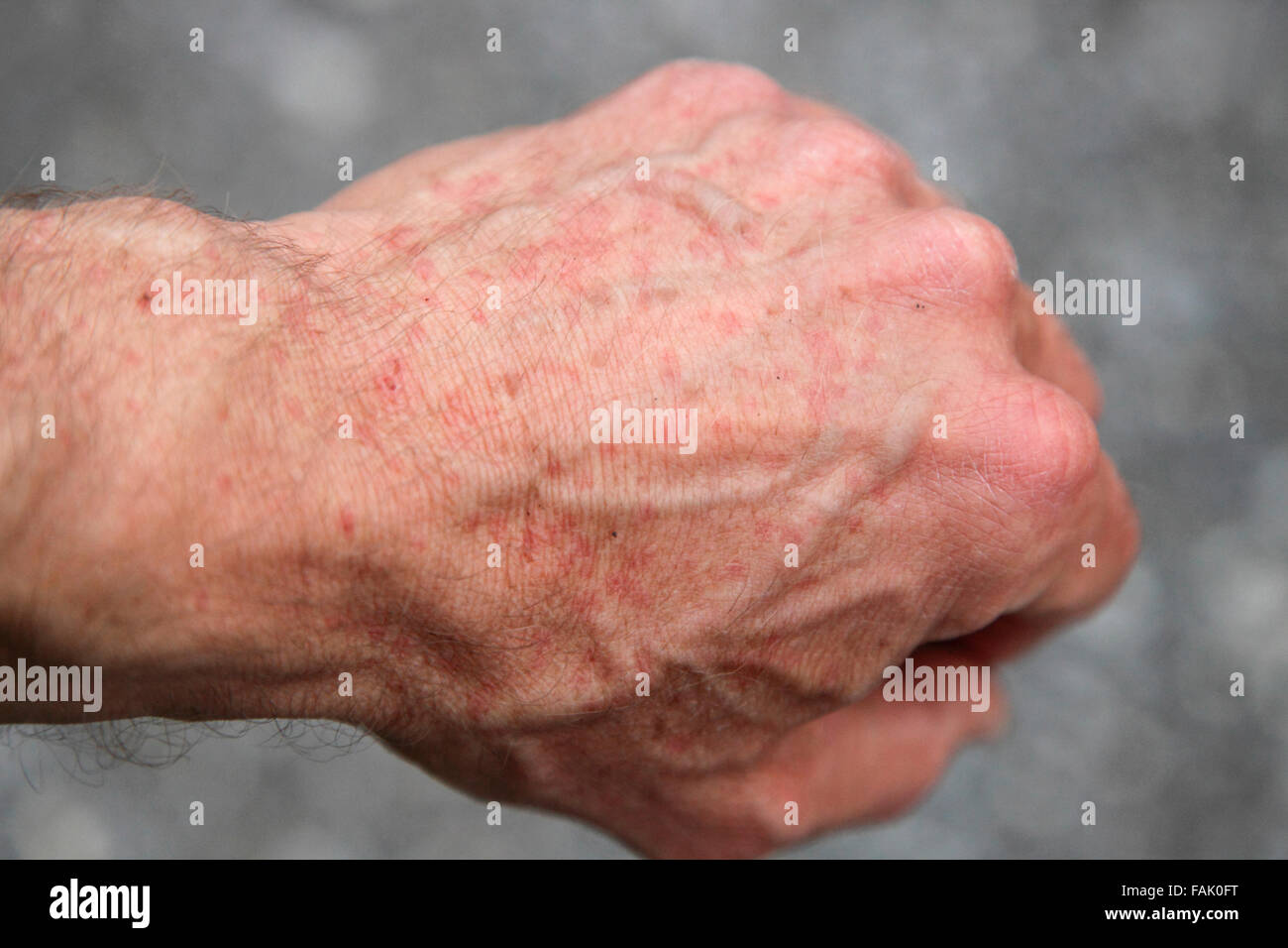 Viele Fotos In Einem Bild Insect Bites Stockfotos And Insect Bites Bilder Alamy
