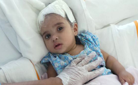 Baby Blinded After Falling Off Bed At Dubai Home