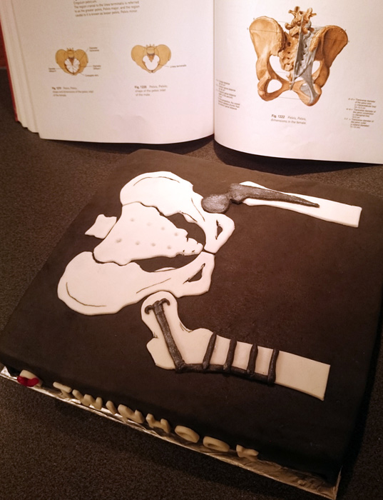 Twin hook skeleton radiology cake - röntgentårta