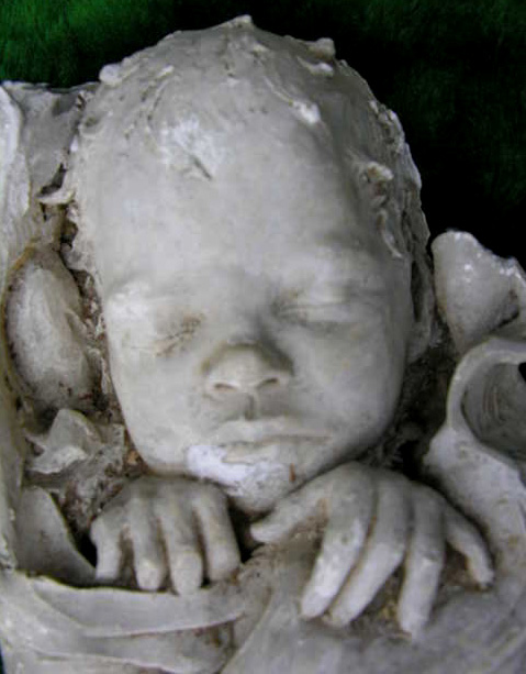 A Victorian death mask of a child
