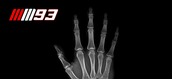Marc Marquez Breaks Finger – May Not Race Next Weekend