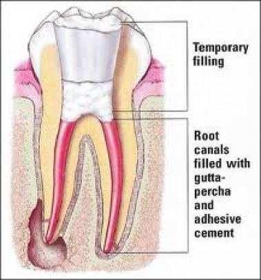 Root canals harbor infection