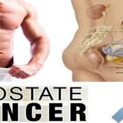 Apa Itu Kanker Prostat?