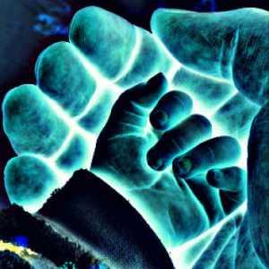 paralisis de Erb osteon