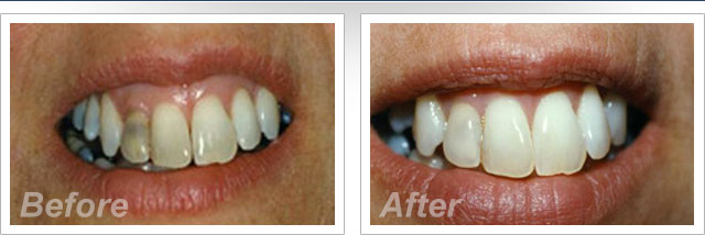 Photo Gallery Carrels Family Dental Care