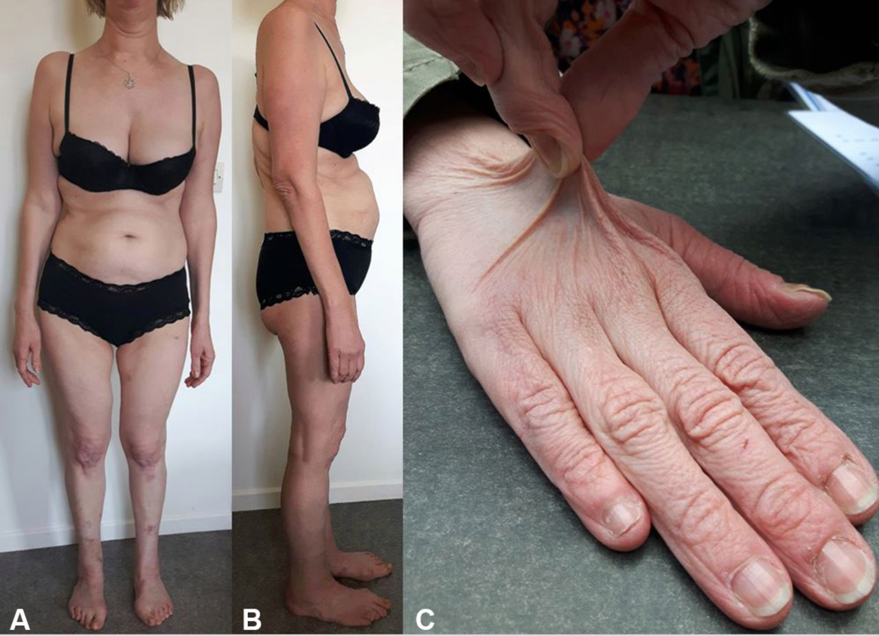 Ehlers Danlos Syndrome Arterial Fragility In Kyphoscoliotic Ehlers Danlos Syndrome Bmj
