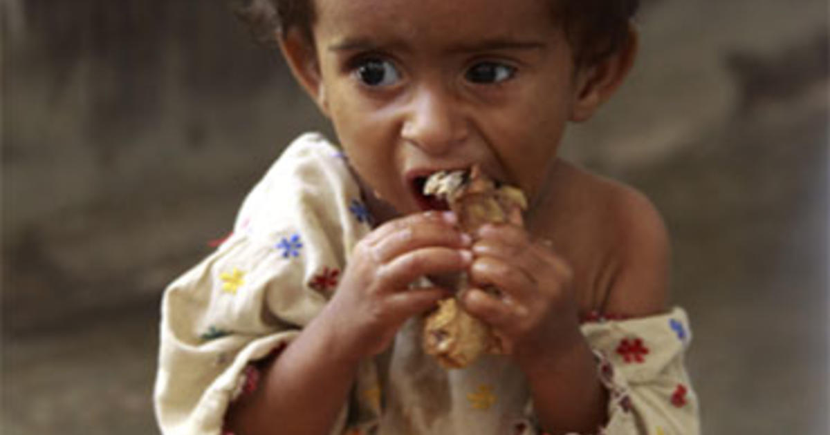 Baby Newborn Diarrhea 100 000 Starving Kids In Pakistan Face Death Cbs News