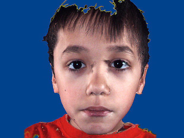 Is it autism? Facial features that show disorder - Photo 3 - Successful Person With Autism