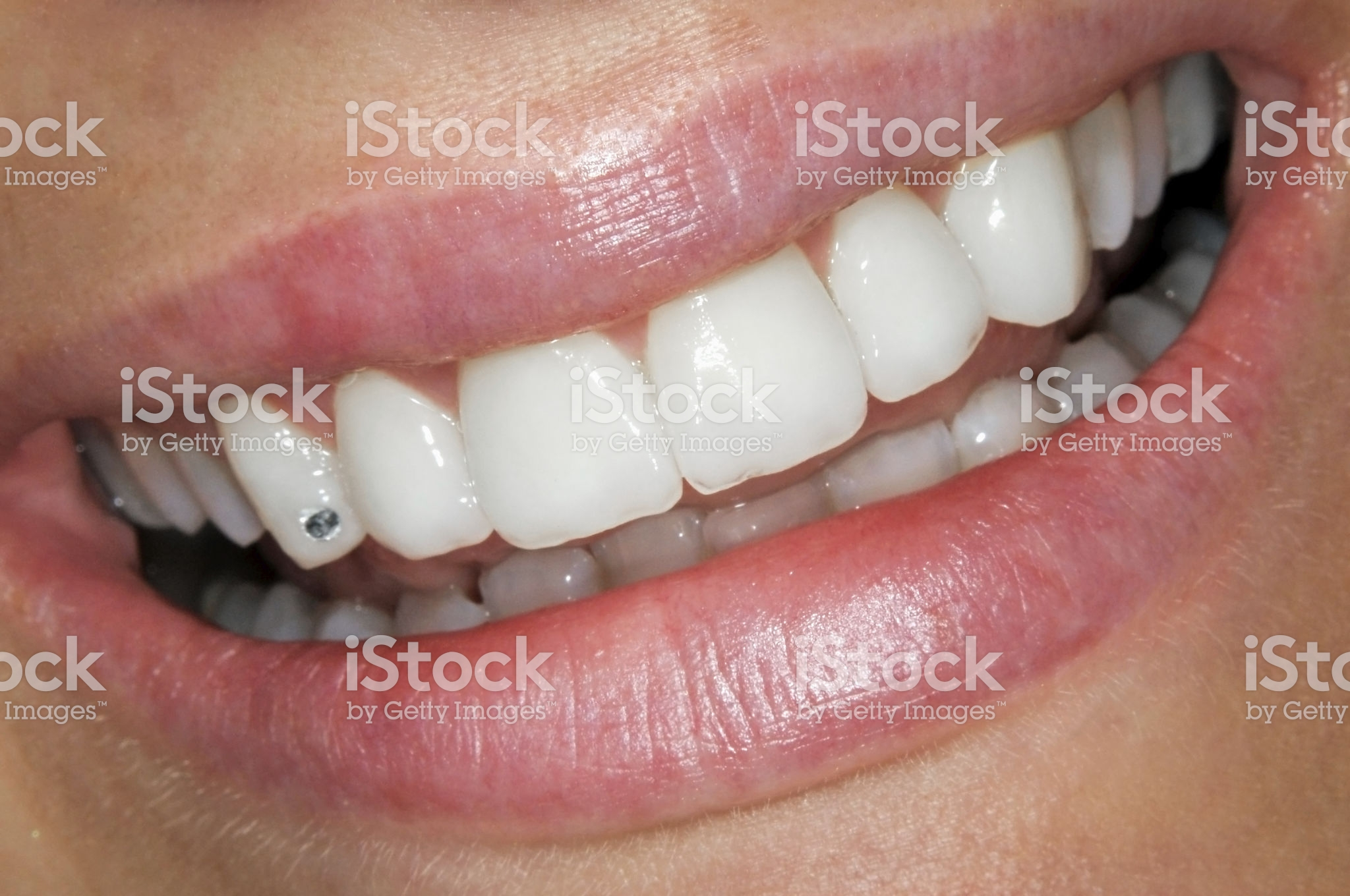 Dents En Porcelaine Recouvrement Labial Dentiste Saint Georges Dent En Céramique