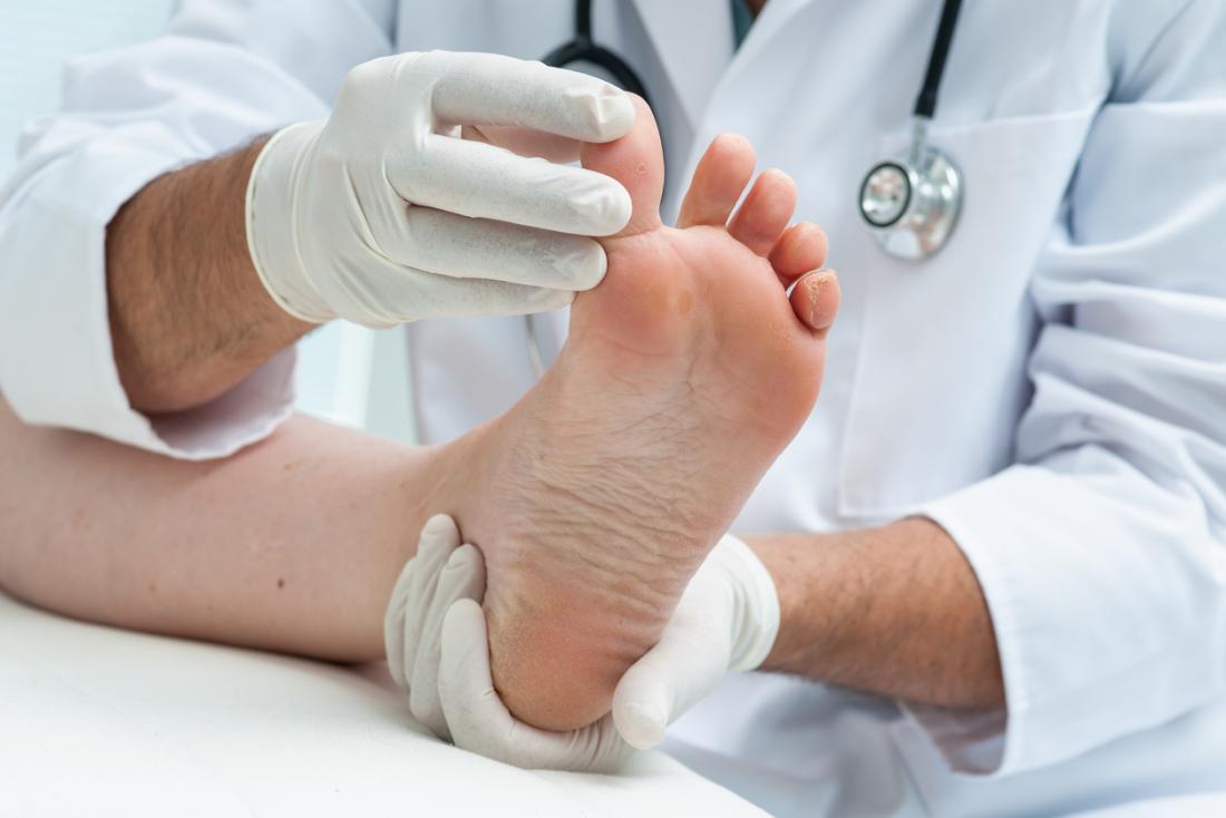 Podiatre regardant le pied d'athlète.