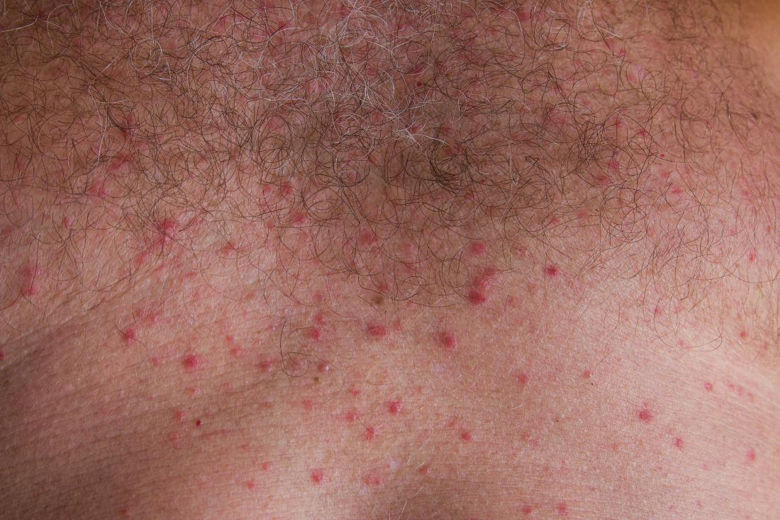 Heat rash <br>Image credit: Jurfeld, 2018</br>