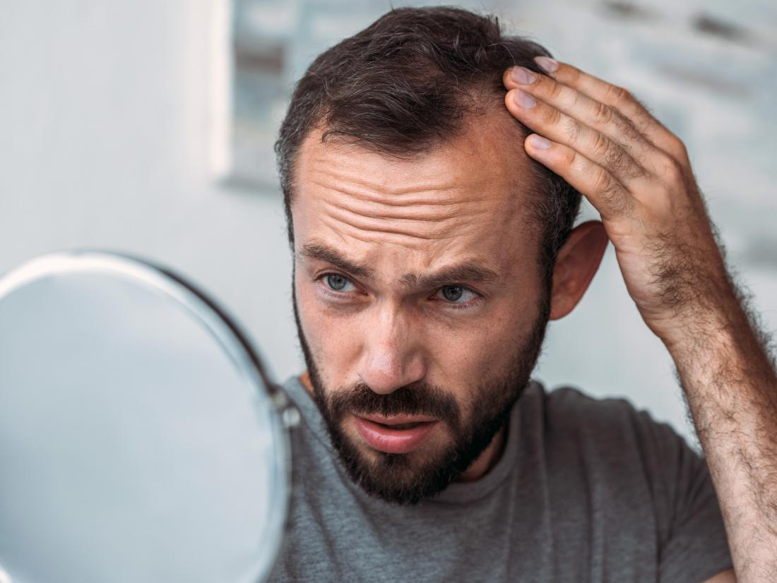 A man experiencing hair loss because of a problem with his Thyroid