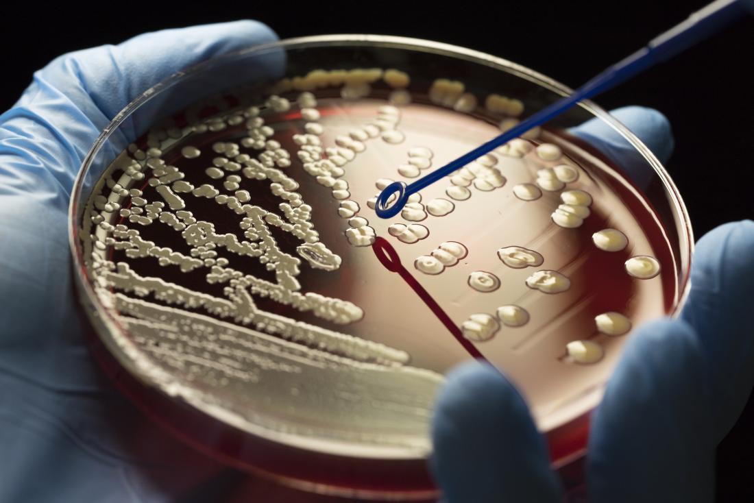 mrsa in petri dish