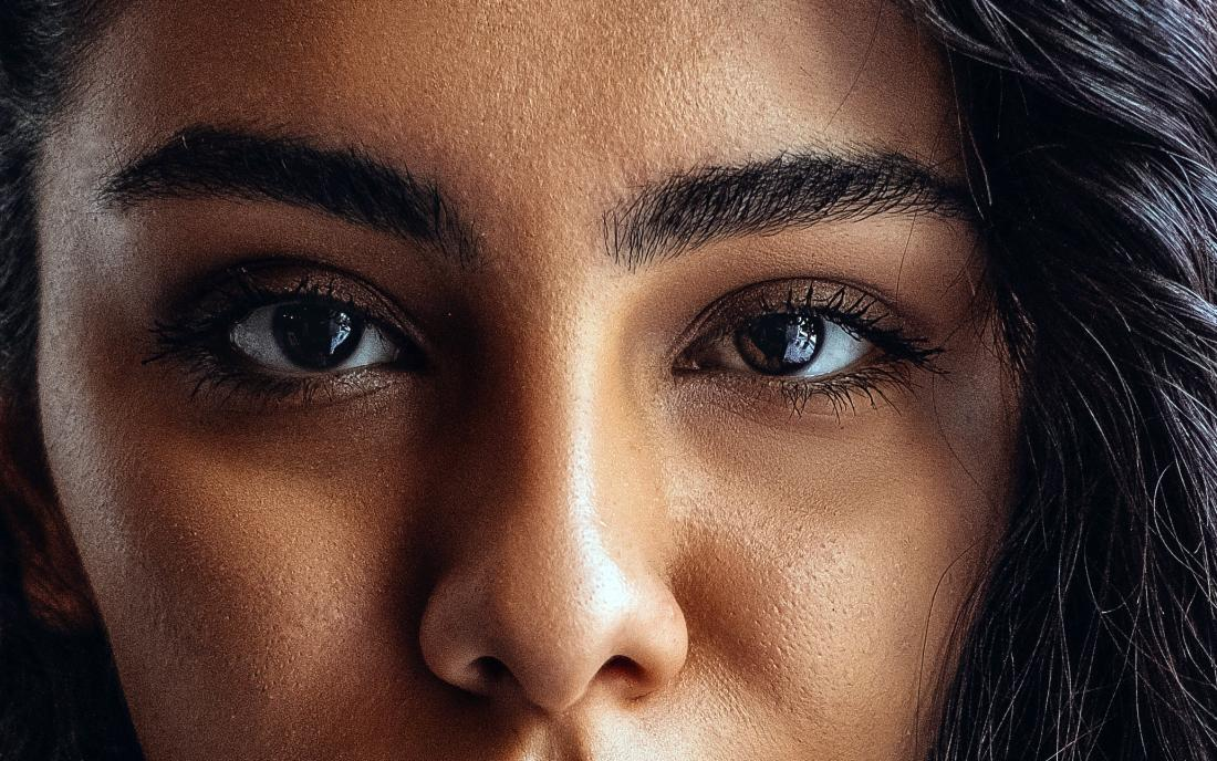 a woman with Asymmetrical eyes