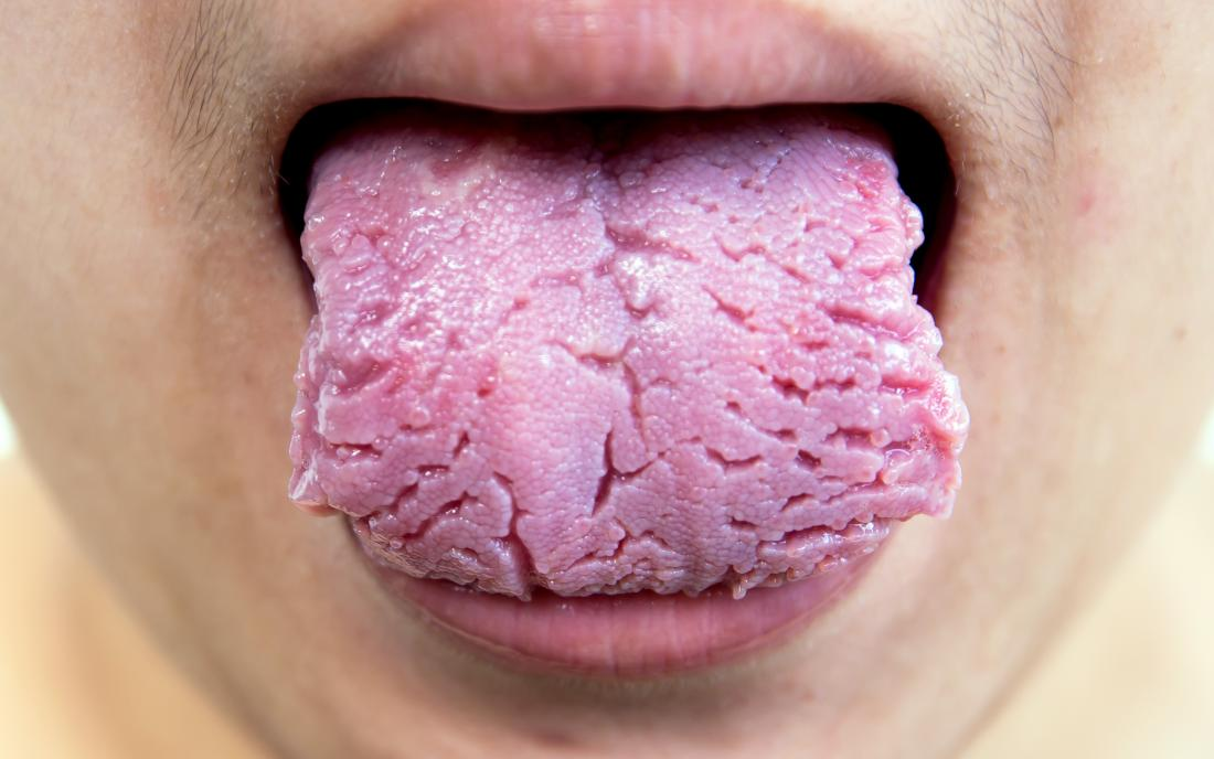 a fissured tongue