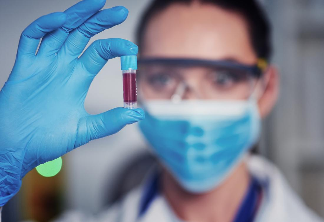 close up of scientist looking at blood sample