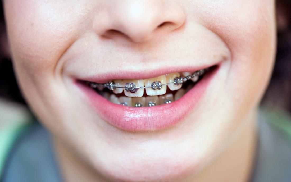 a person with braces that do not hurt him