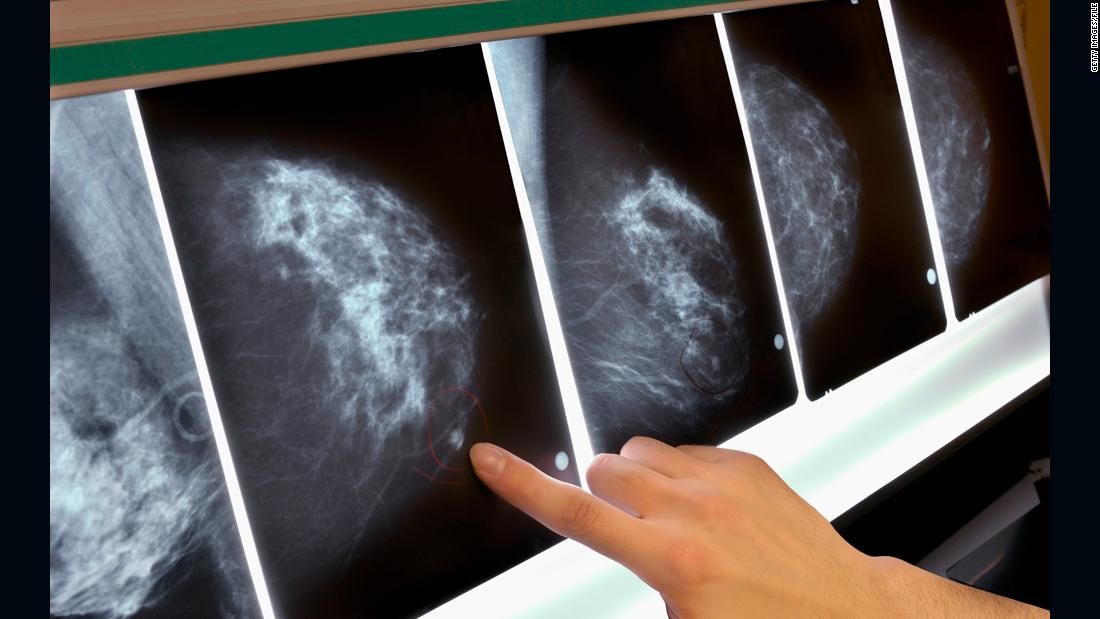 Third of breast cancer patients treated unnecessarily, study says - CNN