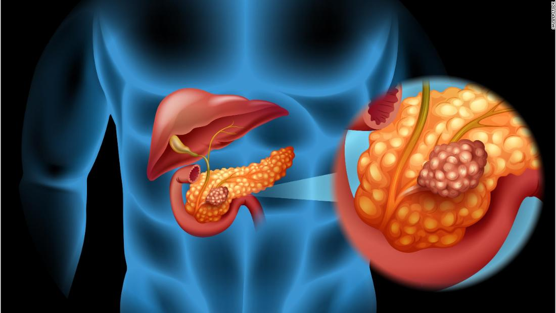 Pancreatic cancer Here\u0027s why it\u0027s so deadly - CNN
