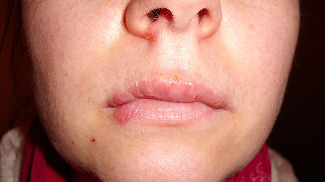 Do I Have Herpes Or Is It Paranoia? 1