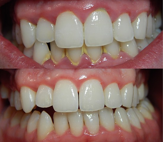 Difference Between Gingivitis and Periodontitis Difference Between
