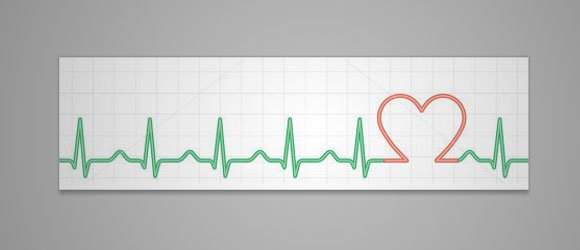 Heart Rate Chart Template Blood Pressure Chart In Excel Create Your - Heart Rate Chart Template