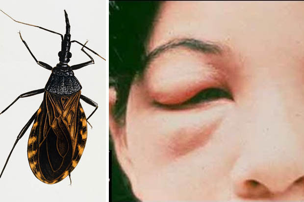 Fears over lethal insect kissing bug insect in the UK Daily Star
