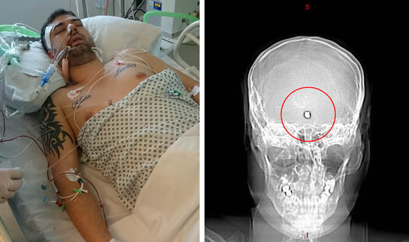 Air Travel Uk Weather Ticking Time Bomb Man Shot In Head Lives With Bullet In