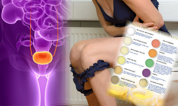 What does your urine colour mean? Brown wee could be a symptom of