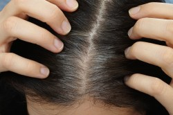 Beautiful Hair Regrowth Damaging Hair Follicle Hair Loss Caused By Disappearing Researchers Collagen Japanese Researchers Have Found That A Specific Type Collagen Isresponsible Hair Treatment Collagen