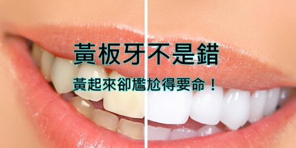 【牙齒美白】費用、推薦方法 11