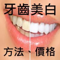 【牙齒美白】費用、推薦方法 9