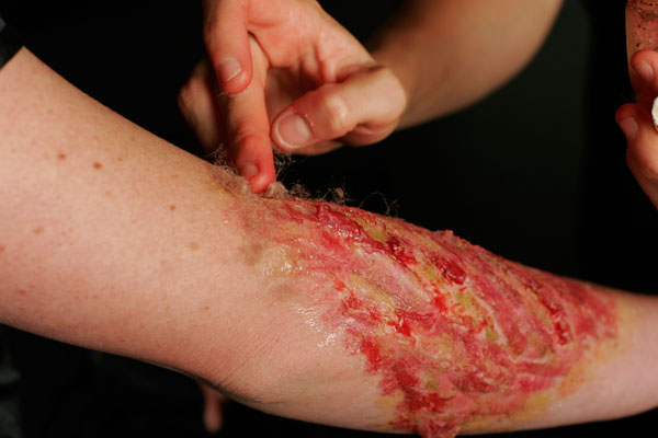 flashback-wound-3.jpg
