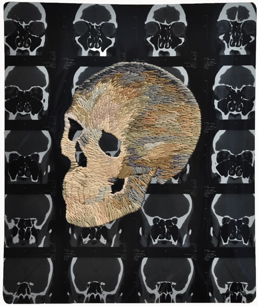 matthew_cox_embroidered_mri_skull.jpg