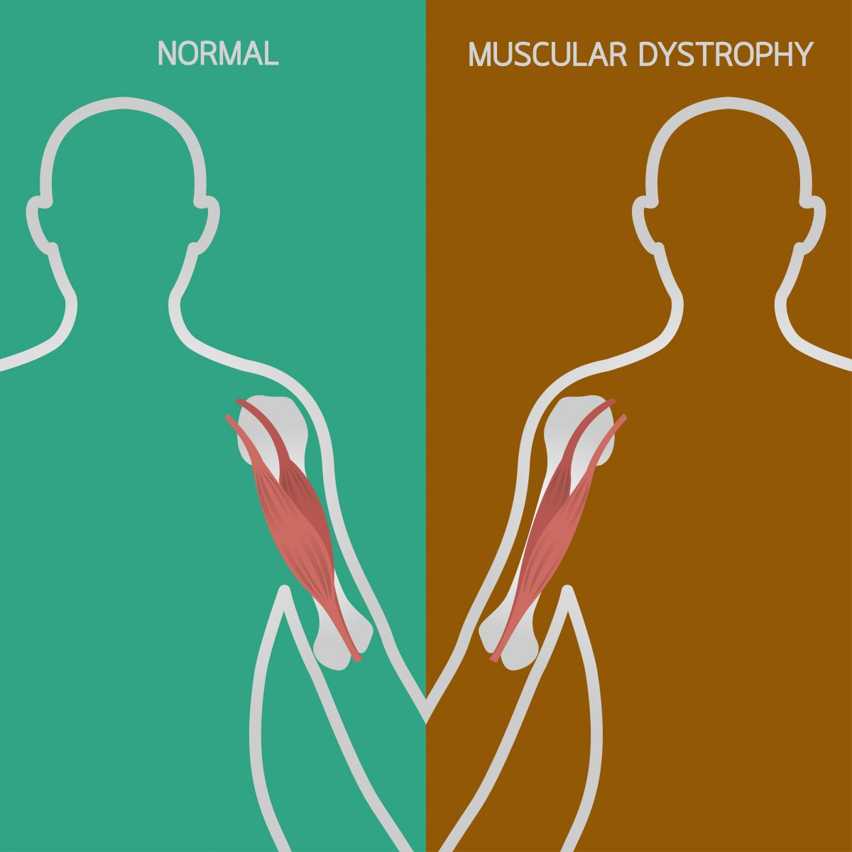 Duchenne Muscular Dystrophy News Md Study Finds Lack Of Signaling Protein Inhibits Muscle
