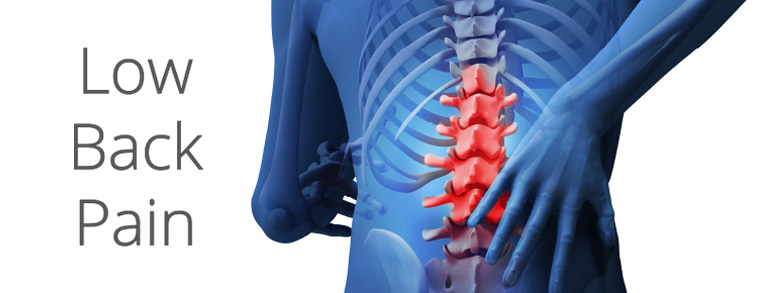 What Is Lower Back Pain Pain Doctor