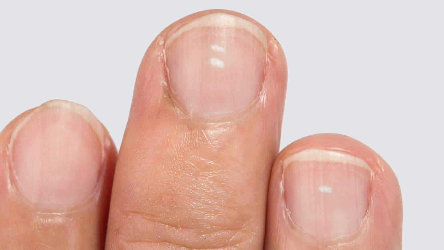 What The White Spots On Your Fingernails Reveal About Your
