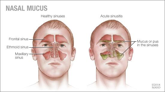 Mayo Clinic Q and A Nasal mucus color \u2014 what does it mean? \u2013 Mayo